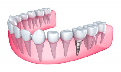 Dental Implants Oakville