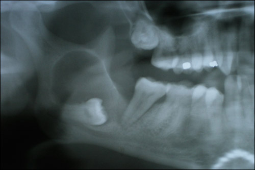 Wisdom Teeth Removal Oakville